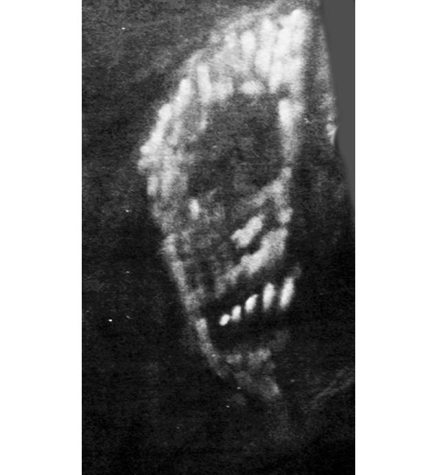 A skeletal face painted on a wall in James Gordon Wolcott's room.