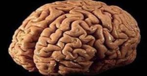 Akl hastal tedavisi iin beyin hcresi gelitirildi