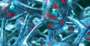 Parkinson beyin hcrelerini ar stp ldryor